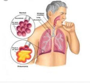 Cara ampuh  mengobati TBC
